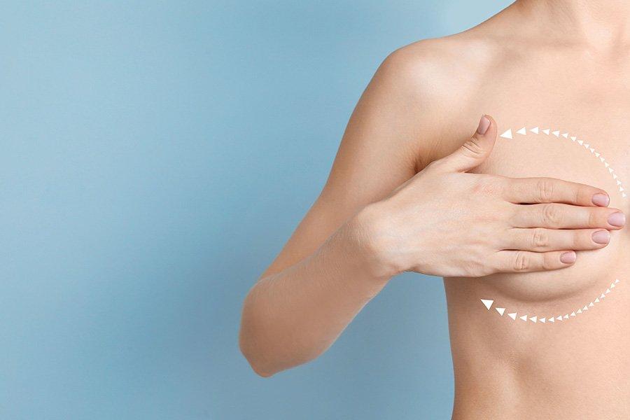 Tipos de implantes por su forma