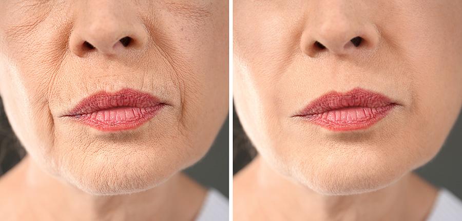 Procedimientos no quirúrgicos para mejorar la cara