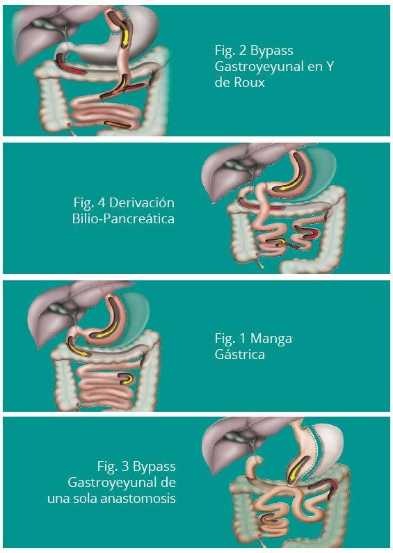 Cirugía bariátrica, cirugía de diabetes