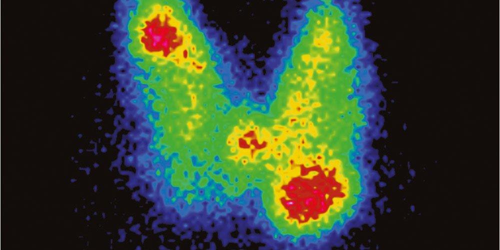 centellogramas tiroideos