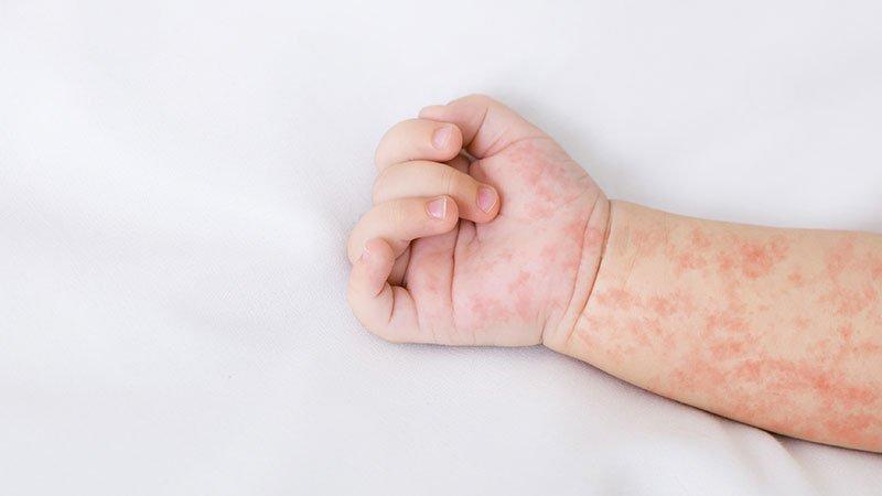 Dermatitis en niños