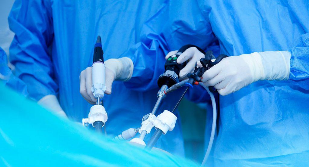 Reparación laparoscópica de la hernia