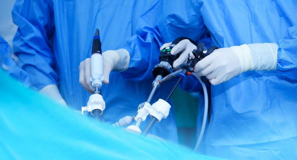 Práctica y resultados de una Apendicectomía Laparoscópica