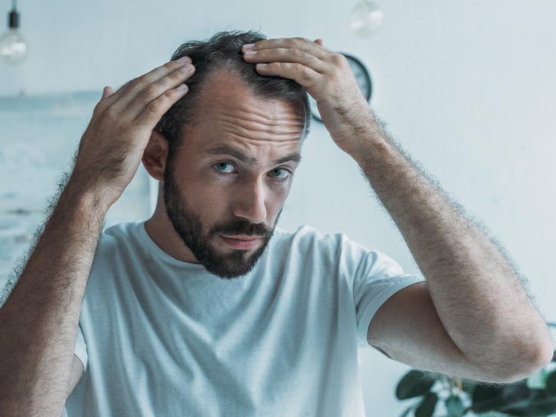La alopecia androgenética (AGA)