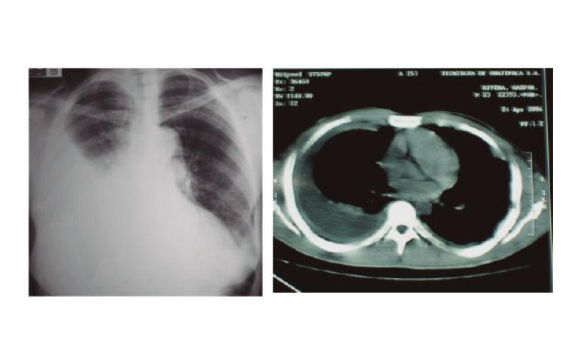 ¿Cómo se hace el diagnóstico del Empiema Pleural?