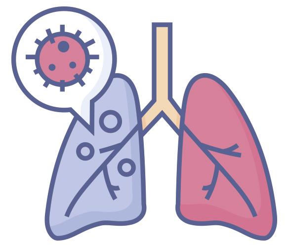 La tos crónica es un mecanismo de defensa del sistema respiratorio