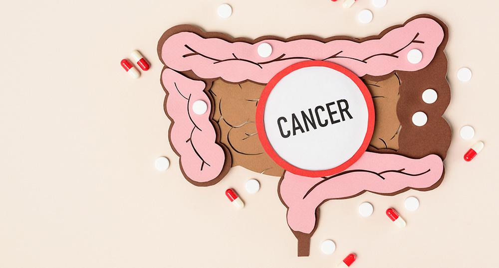 El cáncer de colon en su familia, podría ser hereditario