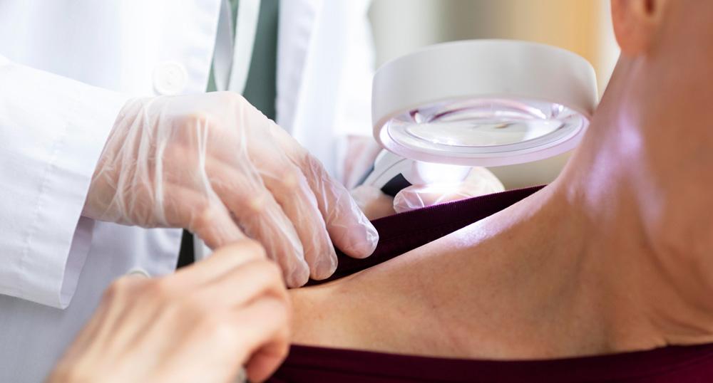 ¿El cáncer de piel es muy frecuente?