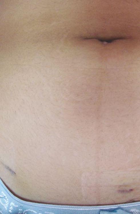Cirugía transumbiulical por orificio de 1 cm.