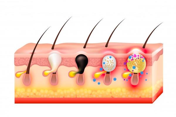 Oxígeno y enfermedades de la piel